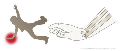 Падение – самая распространенная причина повреждения лучевых костей рук.