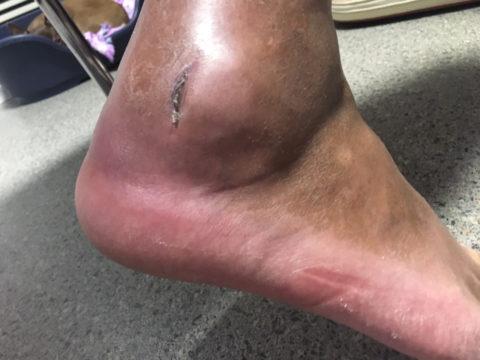 Перелом латеральной лодыжки с перфорированием кожных покровов костными отломками