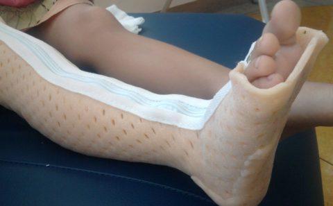 Перелом ноги на фоне ВИЧ инфекции