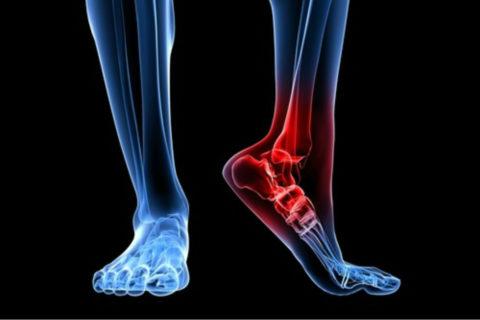 Переломы лодыжек — одни из самых распространенных травм ног