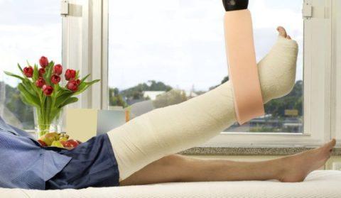 Подвешивание ноги для создания возвышенного положения