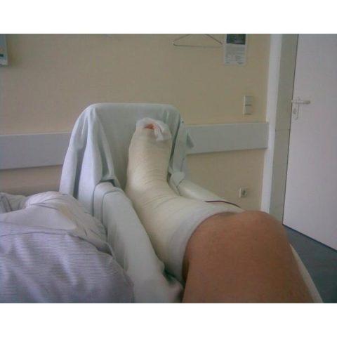 Покой поврежденной ноги