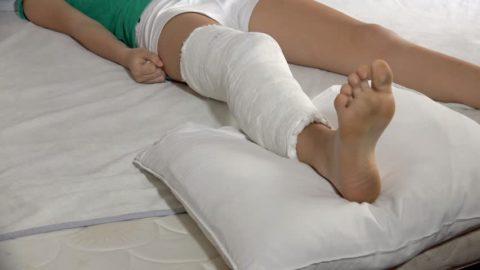 Положение для ноги при переломе голени