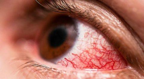 Попадание средства в глаз очень опасно.