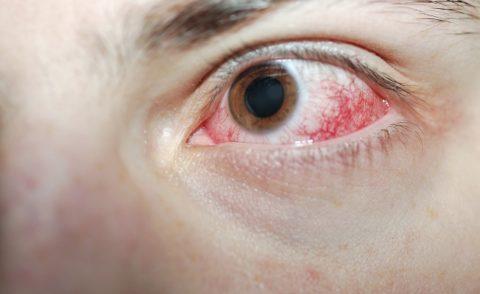 Поражение глаза действием химикатов