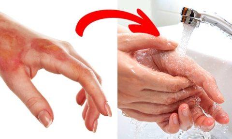 После получения термической травмы, поврежденный участок нужно подставить под струю прохладной воды, но только в том случае, если нет открытых раневых поверхностей.