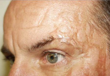Послеожоговый шрам на лице.