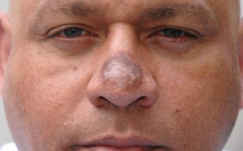 При холодовом повреждении средней тяжести сразу наблюдается стойкая гиперемия тканей лица, а при неправильно оказанной (или не в полном объеме) медицинской помощи могут образовываться шрамы и рубцы.