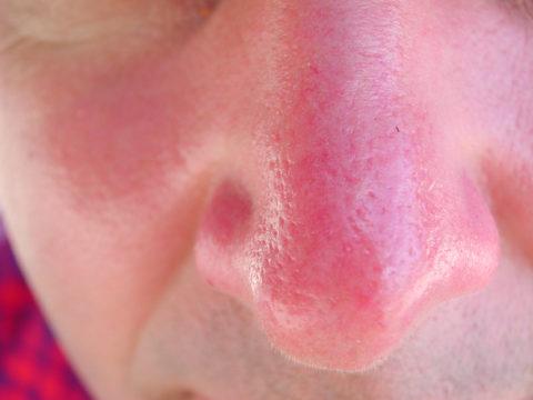 При легкой степени холодовой травмы носа наблюдается небольшая гиперемия кожных покровов, которая спустя время проходит не оставляя следа.