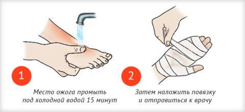 При несильных термических повреждениях стоит промыть травмированную поверхность водой и наложить повязку, затем отправиться на консультацию к специалисту.