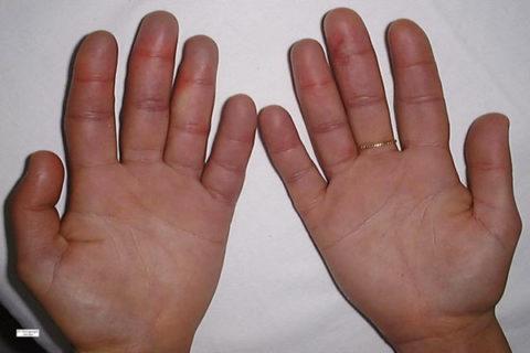 При первой степени термического поражения на пальцах появляются небольшие покраснения и отечность.