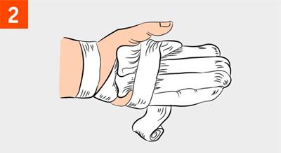 При попадании в «тепло» необходимо на обмороженные конечности накладывать термоизолирующую повязку.