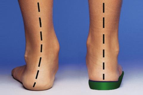 При сломах лодыжек ортопедические стельки нужно носить в течение года