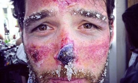 При тяжелом поражении носовых тканей от холода наблюдается посинение кожных покровов, и последствия в таком случае могут быть очень серьезными.