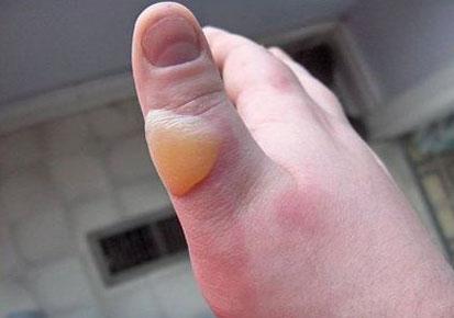 При второй стадии травмы на пальцах появляются волдыри с прозрачным содержимым.