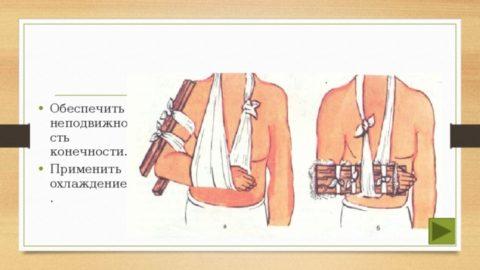 Прикладывание льда и фиксирующая повязка – элементы оказания первой помощи.