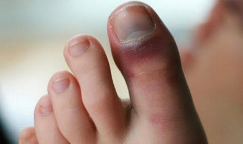 Признаки повреждения пальца нижней конечности
