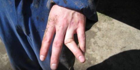 Разновидности нарушенной целостности кости фаланг пальцев