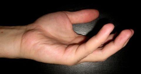 Разные виды травм фаланг пальцев в зависимости от локализации