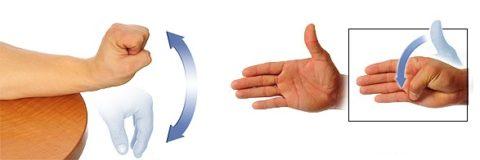 Разработка руки – обязательная мера восстановления периода реабилитации.