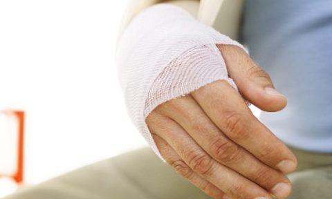 Рекомендации кконсервативному лечению перелома лучевой кости