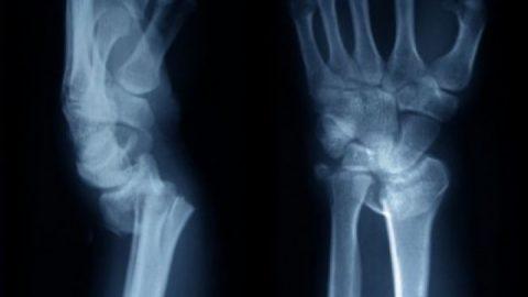 Рентгенография – самый популярный метод диагностики переломов, вывихов, иных травм.