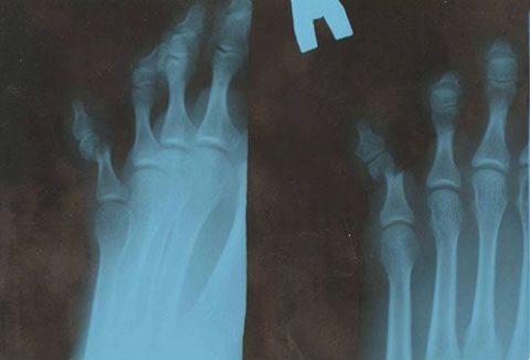 Рентгенологический снимок перелома мизинца с деформацией отломков