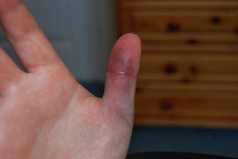 Способы определения типа повреждения пальца руки