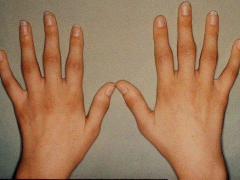 Сравнение здоровой и поврежденной руки для определения диагноза