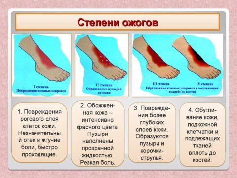 Существует 4 стадии ожоговых повреждений.
