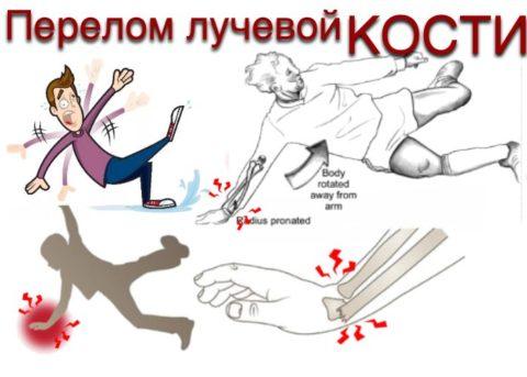 Существует несколько видов переломов, отличающихся по характеру полученной травмы.