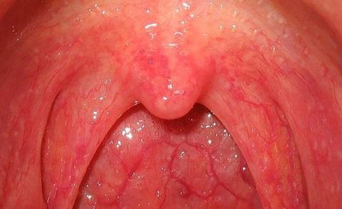 Термическое повреждение горла легкой степени