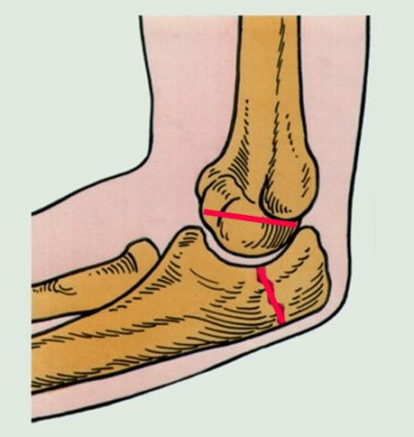 Травма верхней конечности