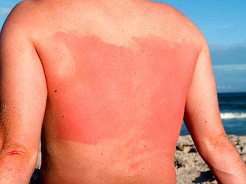 Ультрафиолетовое поражение кожи