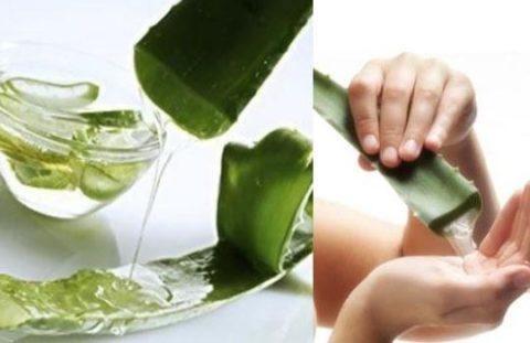 В качестве природного антисептика и ранозаживляющего средства подойдет сок алоэ.