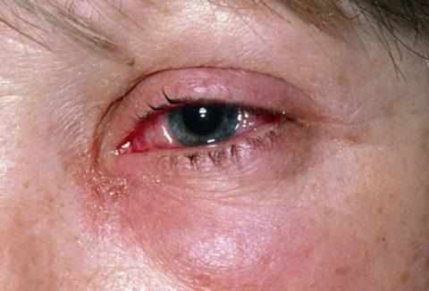 Виды поражения органов зрения