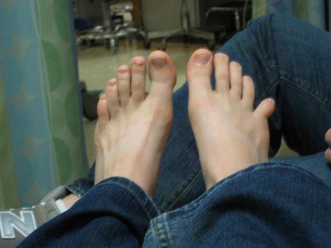 Визуальное определение травмы пальца на ноге
