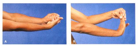 Восстановить подвижность поврежденной кисти помогут народные методы и упражнения.