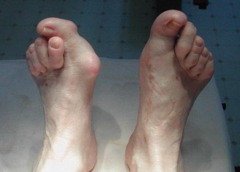 Выраженная симптоматика поврежденной целостности фаланг пальцев наногах