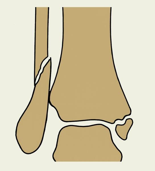Повреждение кости в области коленного сустава