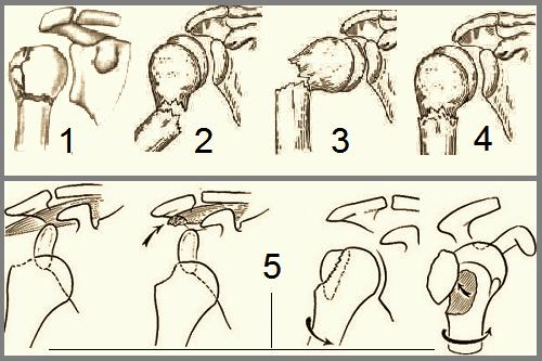 Некоторые варианты: переломов хирургической шейки – 1-4; отрывов большого бугра – 5