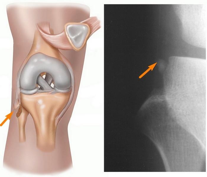 Природа болезненных ощущений при сломанной малоберцовой кости