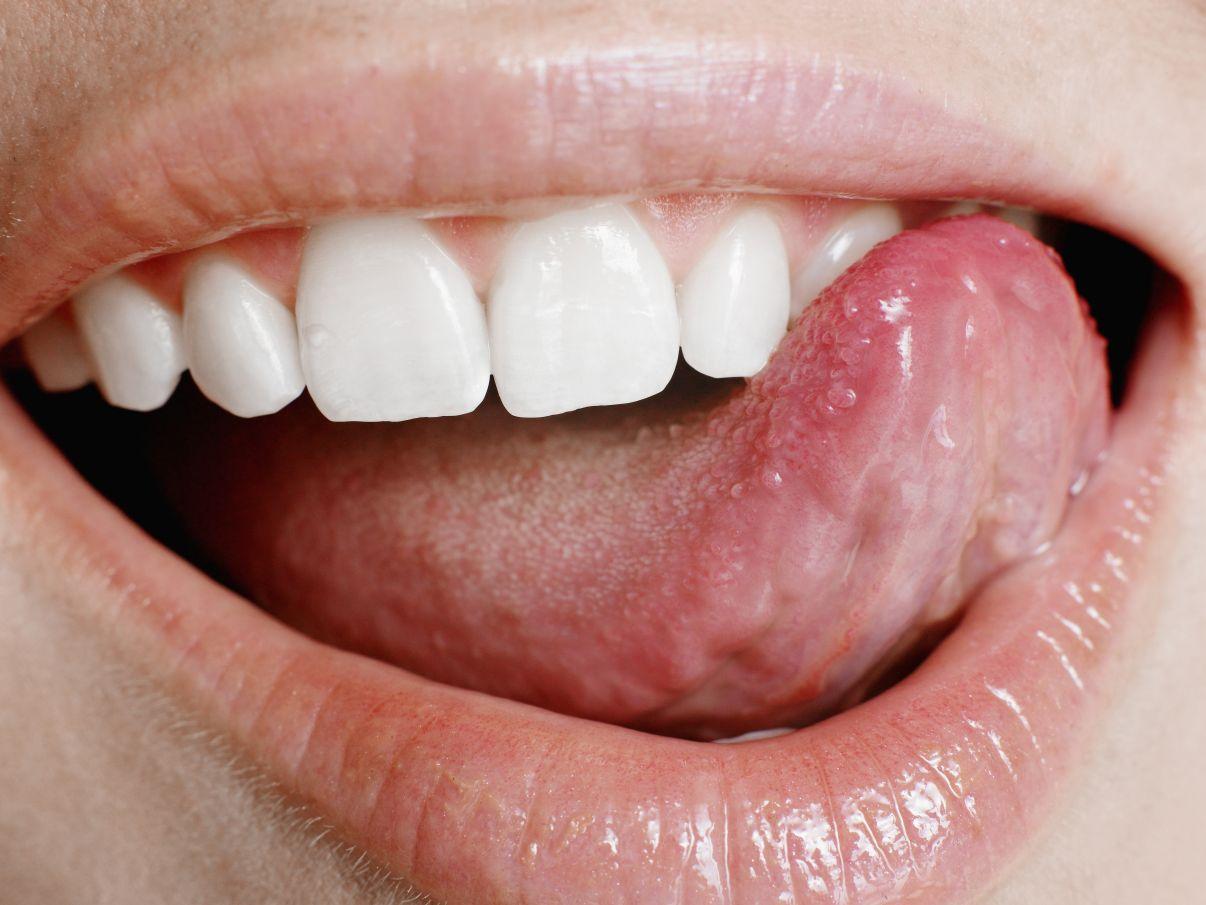 Травмирование слизистой языка горячими жидкостями — типичное бытовое повреждение