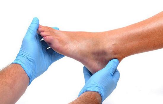 Констатация гиперемии при диагностике травмы мизинца на ноге