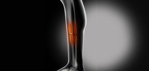 Анатомическая причина укороченности поврежденной конечности