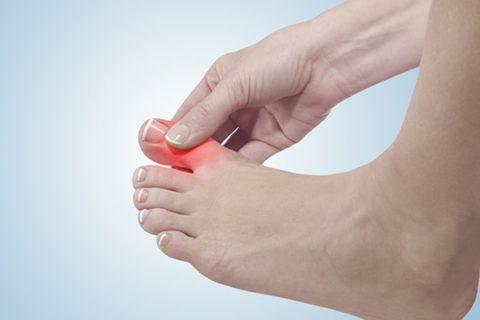 Болезненность при повреждениях пальцев на ногах