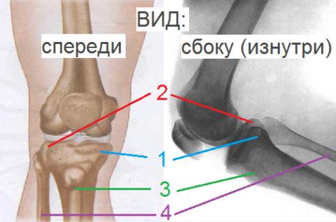 Большая (3) и малая (4) берцовые кости, внутренний (1) и наружный (2) мыщелки