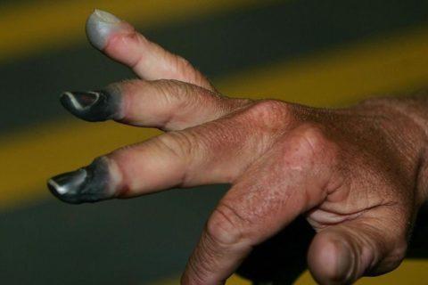 Черная кожа на пальцах после обморожения