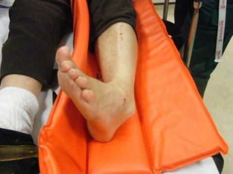 Деформация конечности при повреждении голеностопного сустава.