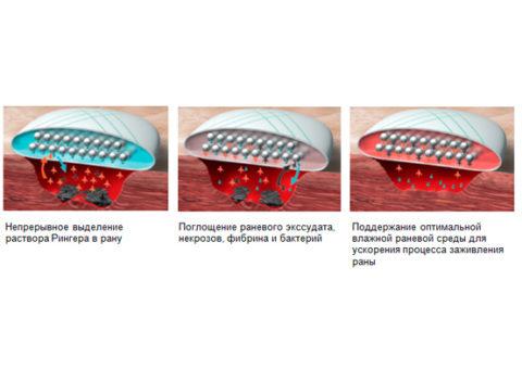 Действие гидроактивных пластырей